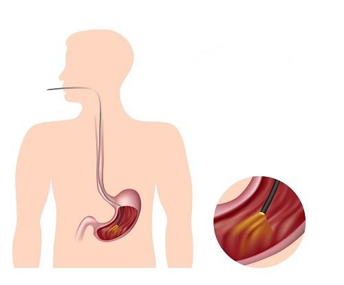 tất tần tật thông tin về nội soi dạ dày