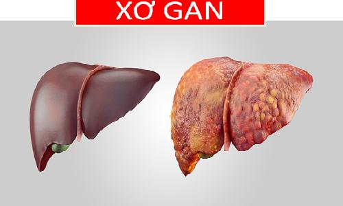 Khi các mô xơ xâm chiếm từ 50% lá gan trở lên thì được gọi là xơ gan.