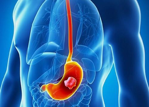 Ung thư dạ dày là bệnh ung thư đường tiêu hóa thường gặp ở cả nam giới và nữ giới