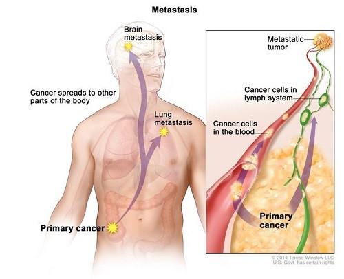 Khối u giai đoạn cuối thường di căn rộng đến các cơ quan ở xa