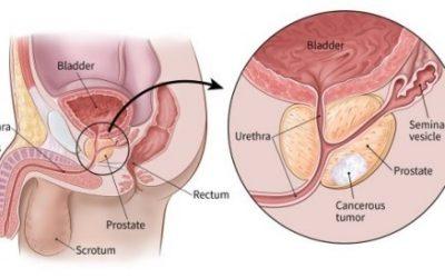 Ung thư tuyến tiền liệt sống được bao lâu?
