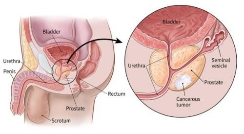 Ung thư tuyến tiền liệt phổ biến trong các bệnh ung thư ở nam giới