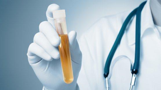 Việc điều trị sẽ tùy thuộc vào nguyên nhân gây tăng bạch cầu trong nước tiểu.