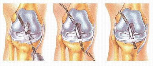 Hiện nay, mổnội soitái tạo dây chằng khớp gối bằng một mảnh gân khác thay thế là phương pháp phẫu thuật hiệu quả