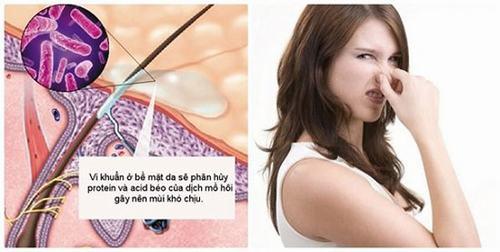 Có rất nhiều nguyên nhân gây ra tình trạng mồ hôi có mùi chua