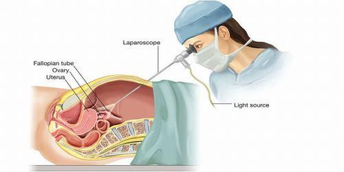 Nội soi ổ bụng tổng quát là phương pháp chẩn đoán khá phổ biến hiện nay.