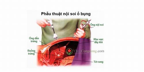 Hình ảnh bên trong khoang bụng được bác sĩ quan sát thông qua con mắt của thiết bị.
