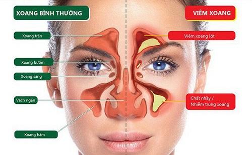 Ngạt tắc mũi do viêm xoang rất phổ biến
