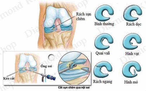 Rách sụn chêm trong độ 2 và cách điều trị