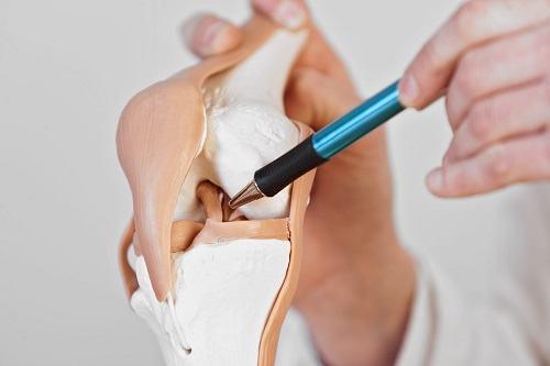 Rách sụn chêm trong độ 2 thường được điều trị bằng can thiệp ngoại khoa