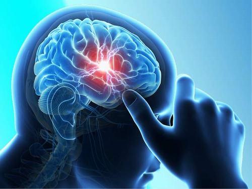 Để biết rõ xuất huyết nãocó chữa được không, trước hết cần nhận biết các triệu chứng báo hiệu
