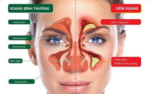 Viêm mũi xoang là bệnh lý rất phổ biến có thể gặp ở bất kì đối tượng nào