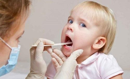Viêm amidan là bệnh rất hay gặp ở trẻ