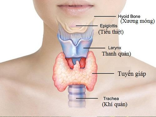 Dấu hiệu bệnh bướu cổ quá nhỏ và khó cảm nhận được mà thường chỉ được phát hiện qua các đợt kiểm tra sức khỏe hoặc chụp CT, siêu âm…