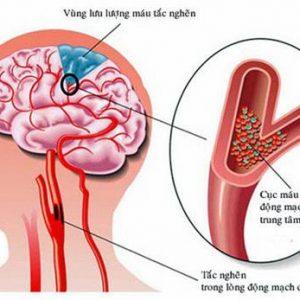 Triệu chứng đau ở đỉnh đầu và những bệnh liên quan