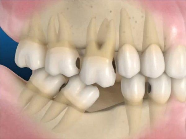 Răng mọc xô lệch, ảnh hưởng đến thẩm mỹ và ăn nhai do mất răng lâu ngày