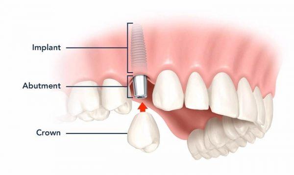 Răng sứ có cấu trúc như răng thật, đảm bảo đẹp tự nhiên và ăn nhai tốt