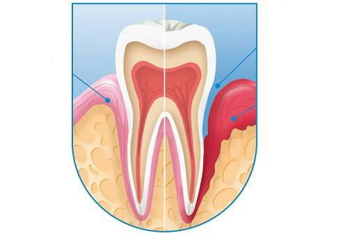 Nhiễm khuẩn chân răng, quanh cuống răng có thể gây viêm xoag sàng