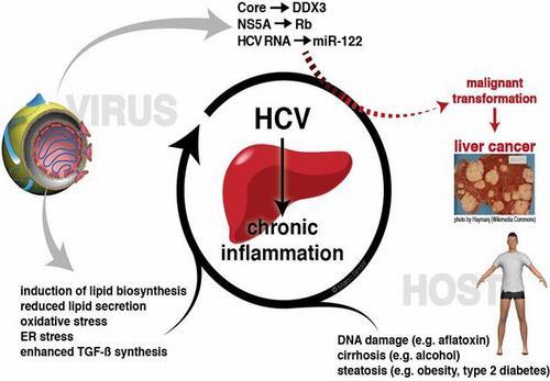 Viêm gan C là bệnh lý nguy hiểm có tỷ lệ tiến triển cao thành các biến chứng xơ gan, ung thư gan, cần phát hiện sớm và điều trị kịp thời để bảo vệ sức khỏe người bệnh.