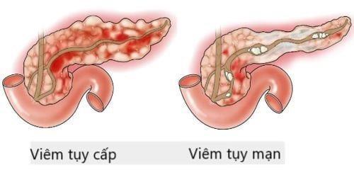 Viêm tụy có hai dạng viêm tụy cấp và viêm tụy mạn tính