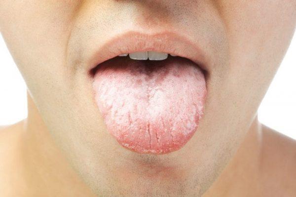 Lưỡi trắng là bệnh gì?