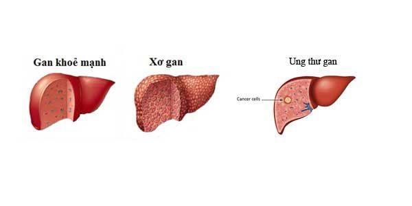 Các bệnh lý về gan mật phổ biến hiện nay
