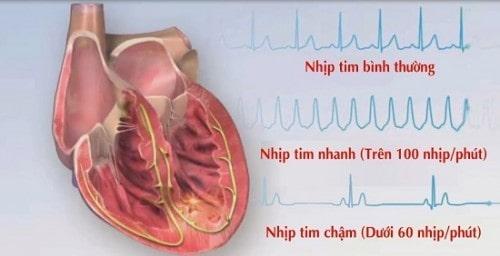 Bệnh viện Thu Cúc khám chữa bệnh tim mạch hiệu quả