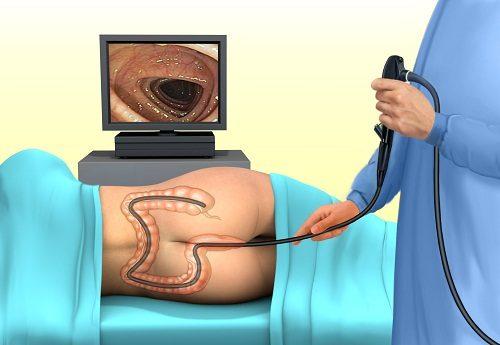 Phòng khám nội soi đại tràng uy tín bệnh viện Thu Cúc