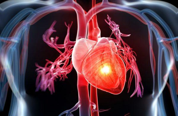 Bệnh tim mạch ngày càng có xu hướng tăng cao