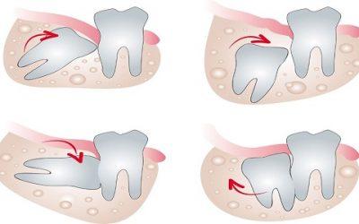 Răng khôn mọc lệch – Nguy hiểm khó lường