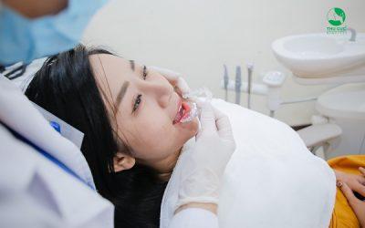 Mặt thon gọn khi niềng răng Invisalign – Liệu có đúng?