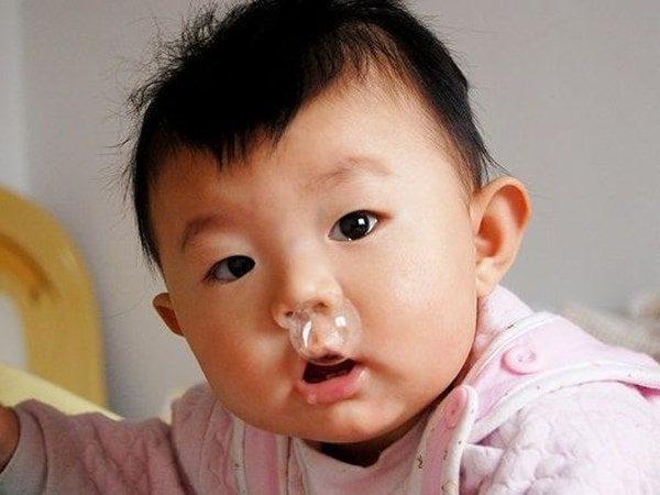 phòng khám tai mũi họng Thu Cúc điều trị hiệu quả nhiều bệnh lý tai mũi họng cho trẻ em