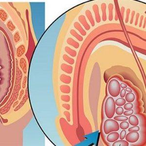 Biểu hiện bệnh ung thư tinh hoàn, cách điều trị