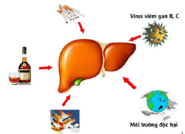 Uống bia rượu, môi trường ô nhiễm, virus viêm gan, thực phẩm bẩn là những nguyên nhân chính gây bệnh về gan