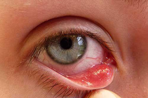 Khi có các dấu hiệu biểu hiện bệnh lý về mắt bạn nên đến thăm khám sớm tại chuyên khoa mắt Thu Cúc, đây là địa chỉ uy tín điều trị nhiều bệnh lý về mắt được mọi người tin tưởng