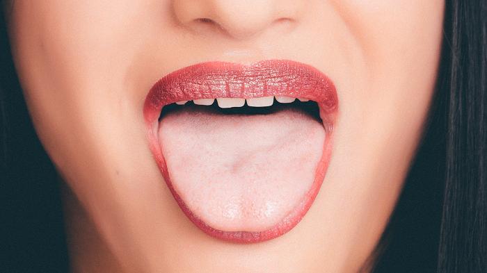 Ung thư lưỡi có biểu hiện như thế nào, cách điều trị