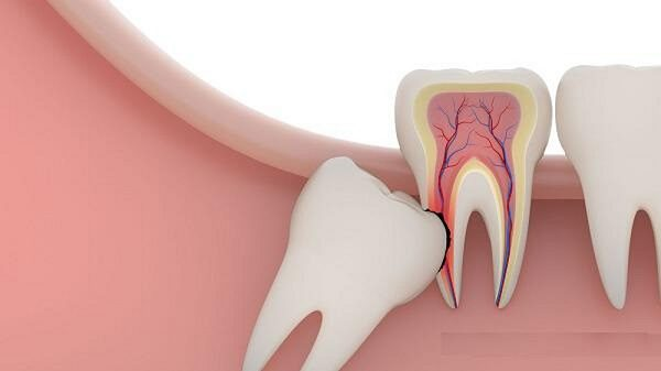 Nhổ răng khôn không đau ở Thu Cúc