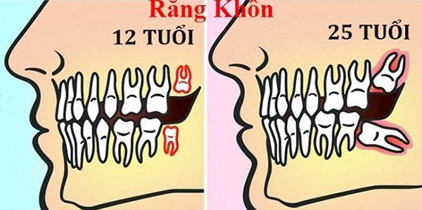 nhổ răng khôn có bị gì không