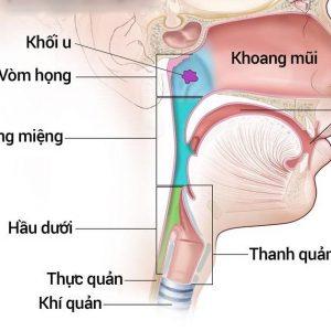 Tầm soát ung thư vòm họng ở đâu tốt?