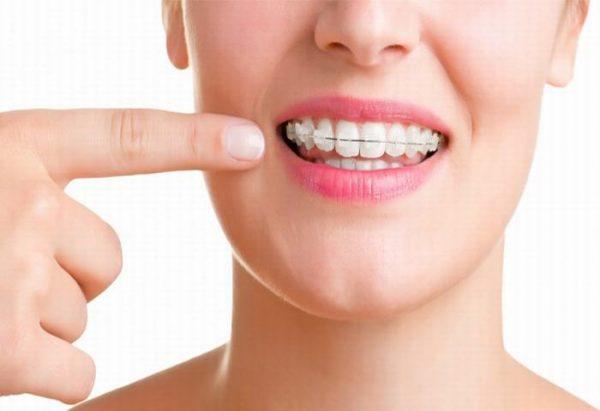 lưu ý khi niềng răng sứ
