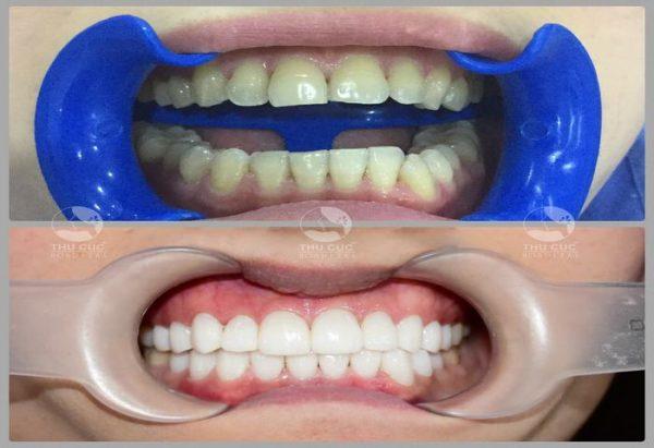 răng thẩm mỹ ở đâu tốt tại Hà Nội?