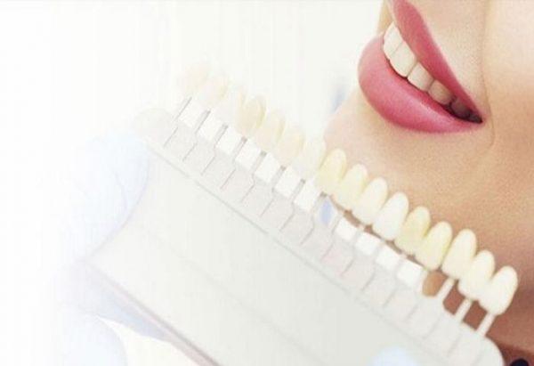 Làm răng thẩm mỹ ở đâu tốt