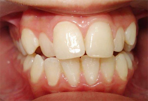 nguyên nhân răng vẩu