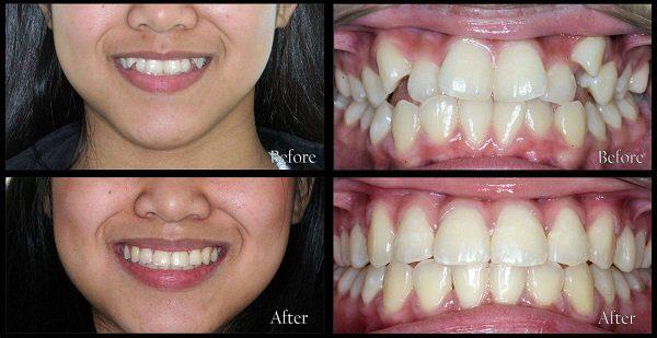 nắn chỉnh răng khểnh Thu Cúc