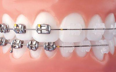 Nẹp răng thẩm mỹ đã thay đổi diện mạo của chúng ta như thế nào?