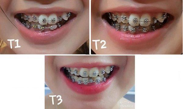 nẹp răng thẩm mỹ Thu Cúc