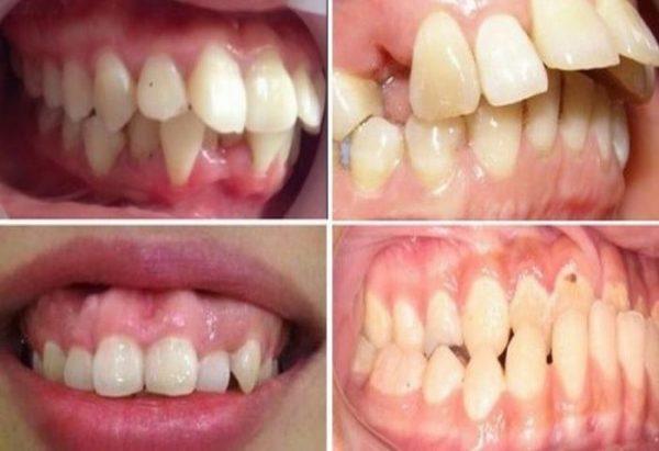 răng vẩu gây mất thẩm mỹ