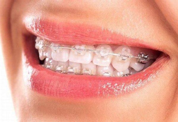 niềng răng sứ giúp cải thiện hàm răng