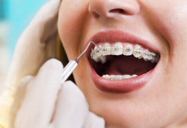 nắn chỉnh răng cho người lớn