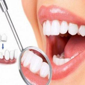 Làm răng thẩm mỹ ở đâu tốt?